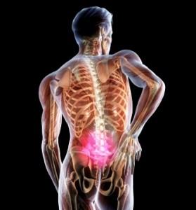 Як лікувати сідничний нерв народними засобами