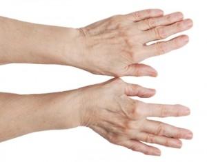 Як лікувати артрит рук