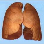 Як очитити легені