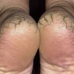 Як лікувати тріщини на п'ятах