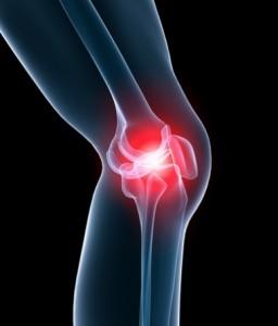 Як лікувати остеоартроз народними засобами